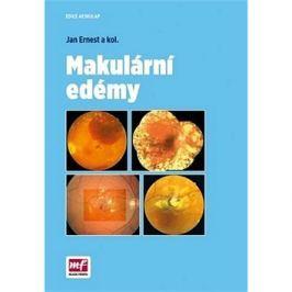 Makulární edémy